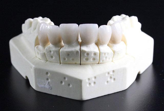 Modell für ein Zahnersatzgerüst bei Ihrer Zahnarztpraxis in Landshut